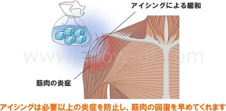 アイシングは必要以上の炎症を防止し、筋肉の回復を早めてくれます